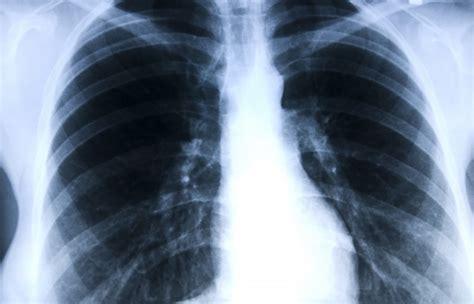 Symptomen longkanker