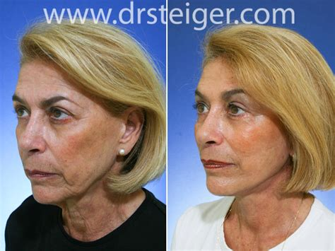 facelift     face lift pictures boca