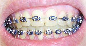 Lavender Braces | www.imgkid.com - The Image Kid Has It!