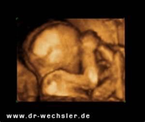 Ssw Nach Et Berechnen : dr wechsler praxis f r geburtshilfe und gyn kologie in d sseldorf frauenarzt frauen rzting ~ Themetempest.com Abrechnung