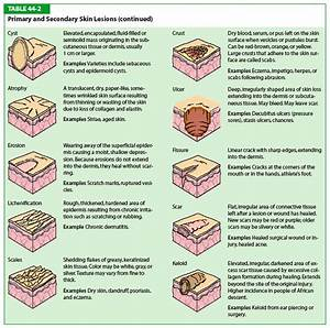 Nail Disorders Chart Download Image Types Of Primary Skin Lesions Chart Pc