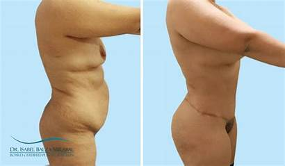 Tummy Mommy Makeover Tuck Before Surgery Dr