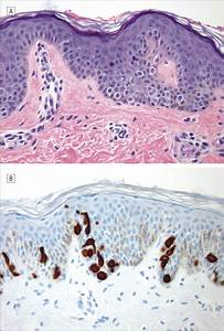 Clear Cell Papulosis  A Connection Of Clear Cells To Toker