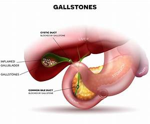 Is The Gallbladder Really  U0026quot Not Needed U0026quot  And Ok To Routinely