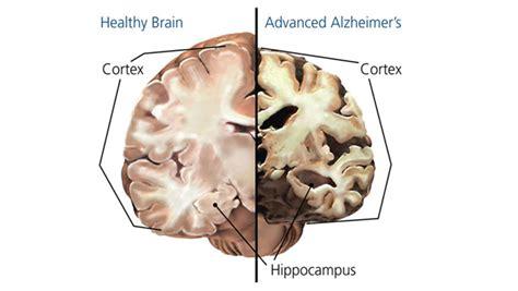 alzheimers disease  dementia today