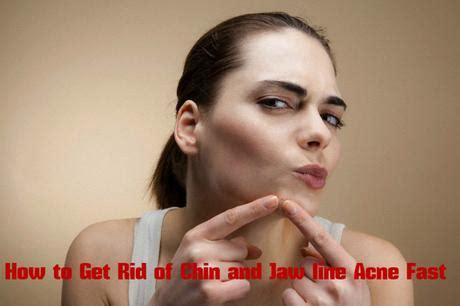 rid  chin  jaw  acne fast paperblog