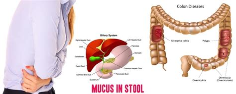 Mucos In Stools - 7 must causes and remedies of mucus in stool