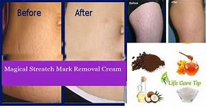 to get rid of stretch marks in a month