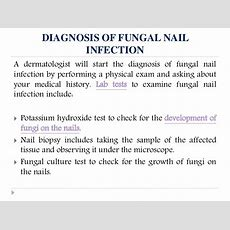 Fungal Nail Infection Causes, Symptoms, Diagnosis And