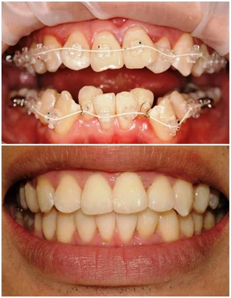 orthodontist practices httpwwwgovernment onlineco
