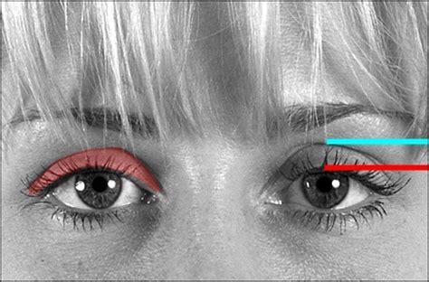 eyelid surgery tutorial upper eyelids page