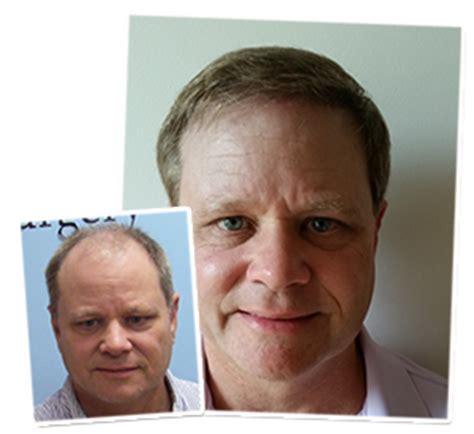 Hair Implants Columbia Sc 29229 Fue Hair Transplant Surgeon Nc Charleston