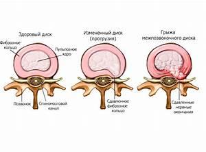 Артроз позвоночника шейного отдела лечение народными средствами