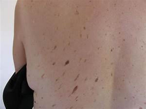 BENIGN SKIN LESIONS, NEVI, CYSTS - Seborrheic keratosis ...
