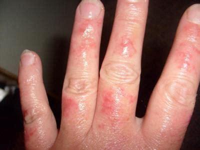 reoccurring skin rash  arms legs  face