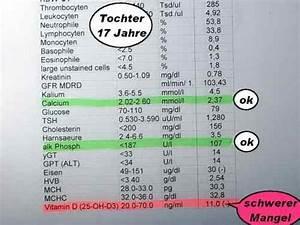 Vitamin D Spiegel Berechnen : familie alle 5 mit vitamin d mangel ~ Themetempest.com Abrechnung