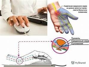 Артрит пальцев при псориазе