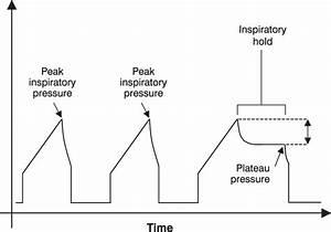 Schematic representation of the airway pressure waveform ...