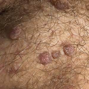 Genital Warts (HPV) - Causes , Picture, Symptoms And ...