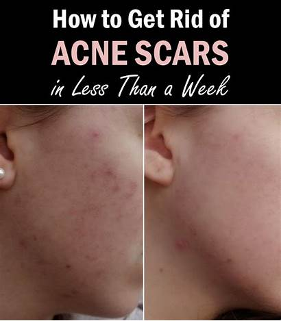 Acne Rid Scars Week Less Than Scarring