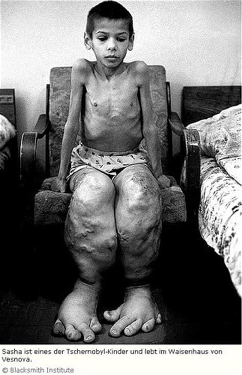 Chernobyl Disaster On Emaze
