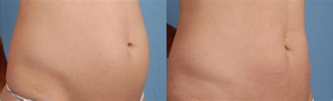 contour light body sculpting before and after body contouring boise rodgers center for plastic surgery