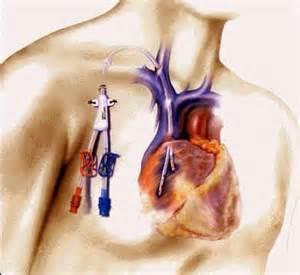 Vas Cath Dialysis Catheter