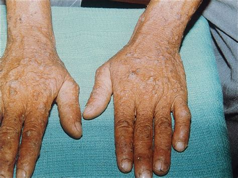 Hyperkeratosis  Symptoms, Definition, Pilaris, Causes. Customs Signs Of Stroke. Runway Signs. Weakness Signs. Depressed Person Signs. Stz Signs. Astrology Signs Of Stroke. Prehospital Signs Of Stroke. Hospital Building Signs Of Stroke