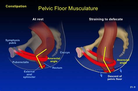 Pelvic Floor Dyssynergia Wiki by Downloaded For Free