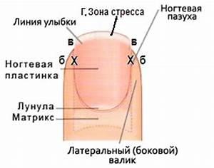После грибка повреждён матрикс ногтя