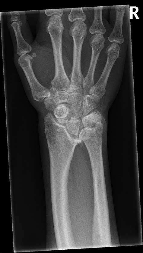 Madelung deformity with ulnar osteotomy | Image