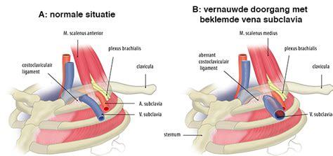 symptomen trombose