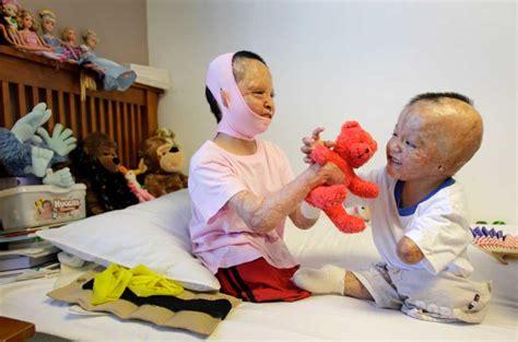 burnt children s family traumatised the chronicle galveston surgeons bring new to family of burned houston chronicle