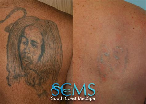 Laser Tattoo Removal Gallery, Before and After Laser