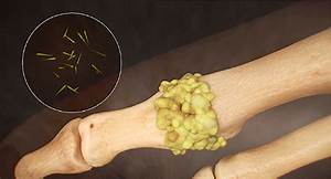 Gout Causes  Symptoms  And Treatments