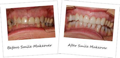 cosmetic dentist perth elegant smiles phone