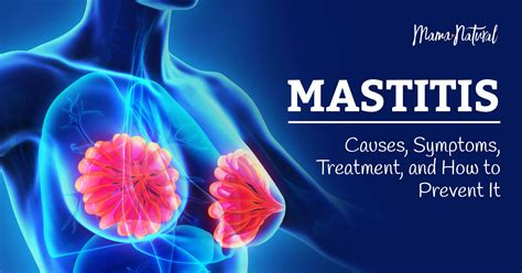 Mastitis Causes Symptoms Treatment And How To Prevent