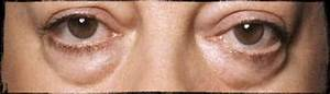 Your Questions Answered  How To Get Rid Of Baggy Eyes