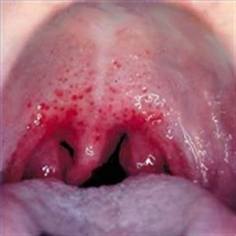 pictures  early strep throat healthtopquestions