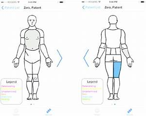 Wound Locations And Status  Ios