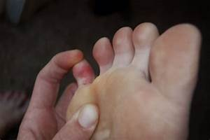 Sharp And Shooting Pain In The Little Toe   Home Treatment