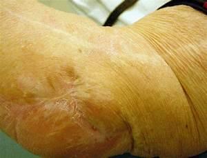Medical Pictures Info  U2013 Bursitis Olecranon