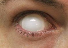 blind eye contacts 1000 images about contacts on contact lens