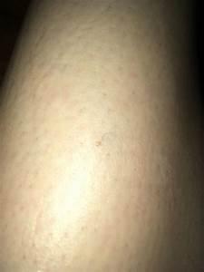 My Skin Ingrown Hair