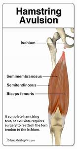 A Complete Hamstring Avulsion Can Occur At The Pelvis  The