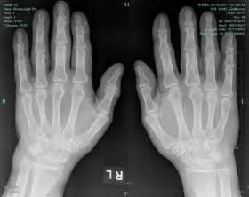 Early Rheumatoid Arthritis Hand X-ray