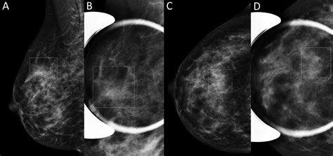The images can then be examined on a computer monitor or printed. Pairing DBT with Automated Breast Density Measurements Leads to Fewer Recalls