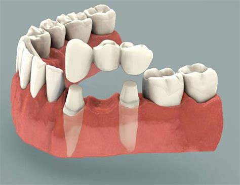 comprehensive guide  dental bridges