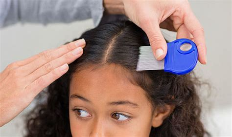Nits And Head Lice Spread By Hair Contact