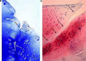 Experimental Model Of Osteochondral Allograft Plugs In